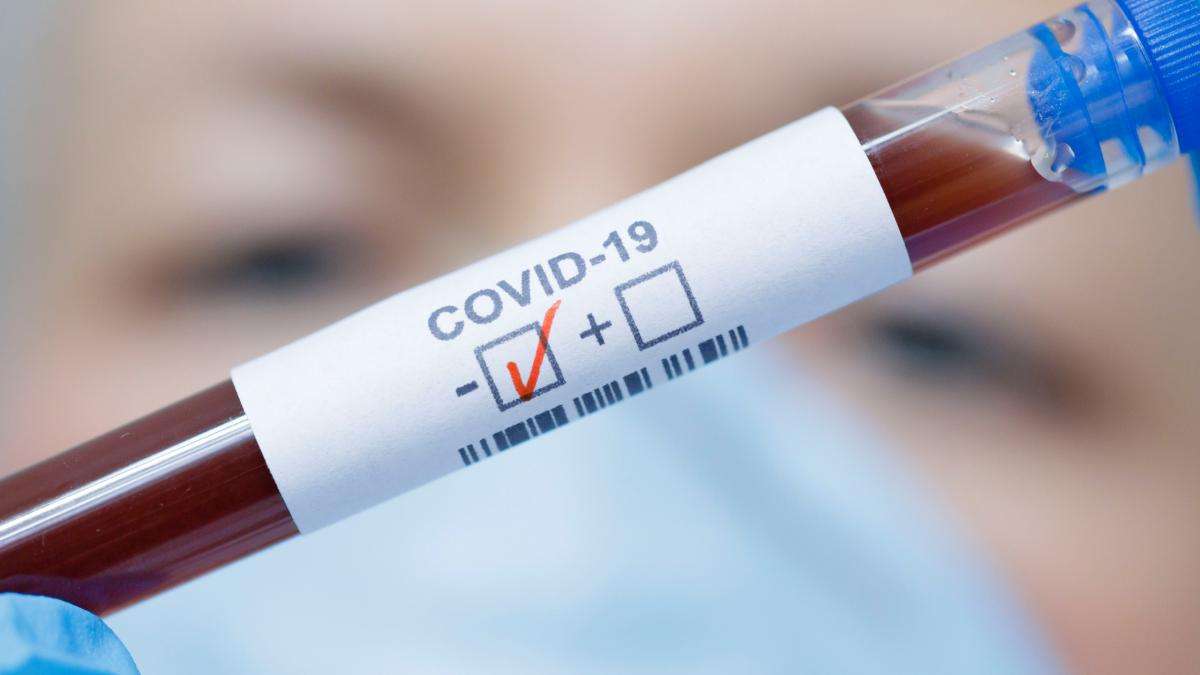 A cuatro se elevan los casos confirmados por Covid-19 en Santa Marta